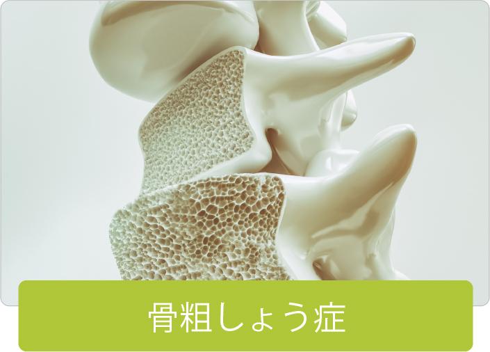 骨粗しょう症