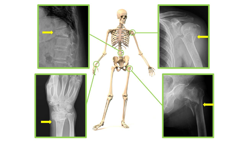 骨粗しょう症になると、どんな骨折をおこしやすくなるの?